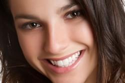 Dental Crowns Dolton IL - Crowns