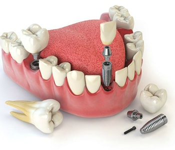 Dental Care Near Me Dolton IL