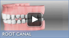 Dean D. Dietrich, DMD Education Video For  Root Canal
