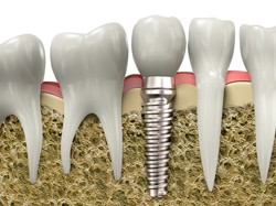 Dental Implants Dolton - Dental Implants