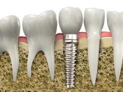 Dental Implants Dolton - Dental Implants