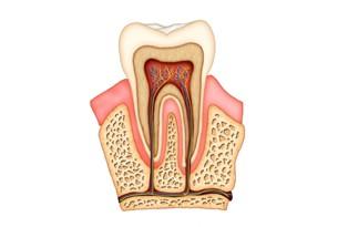 Chicago Endodontics - Root Canal