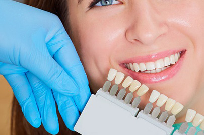 Woman choosing color of teeth at dentist