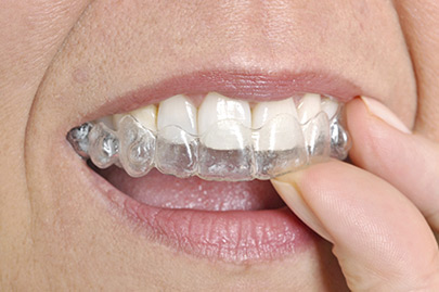 Woman wearing orthodontic silicone trainer