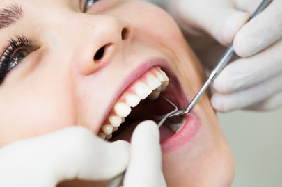Women with open mouth during oral checkup at the dentist