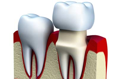 Tooth Crown Procedure in Dolton area